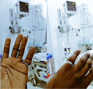 Man narrates how he ended up in the hospital after the engagement ring he bought to propose with got stuck on his finger