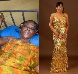 Amazing!! Burn victim who survived a gas explosion shares photos of her amazing transformation