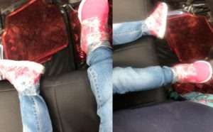 Nigerian mother shares photos of her daughter's legs which were sellotaped to her shoes in school